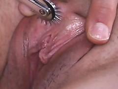 Freckle pinche