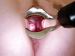 Obese nia gyno speculum exam of her wide open slit