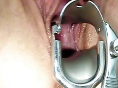 Camilla gyno chair fur pie speculum exam at Kinky gyno clinic